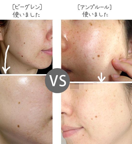 シミ消し化粧品 ビーグレンとアンプルール比較