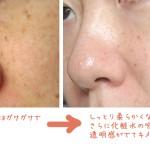 化粧水で改善