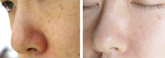 小鼻の赤み 脂漏性皮膚炎1