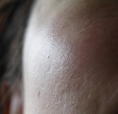 セラミド原液  使用直後の肌 UP1