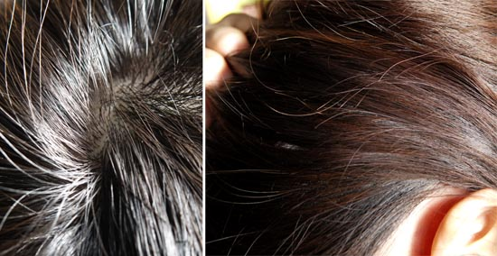 石鹸チャンプー 頭皮