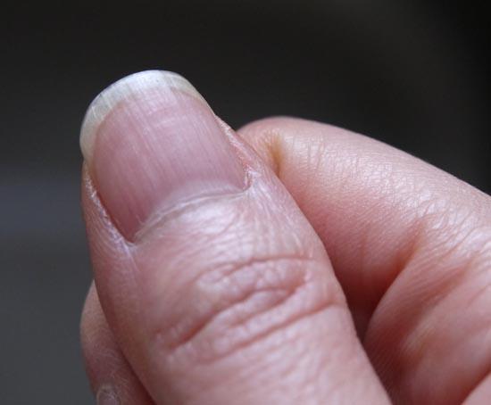 爪のたて線 縦スジ 解消方法