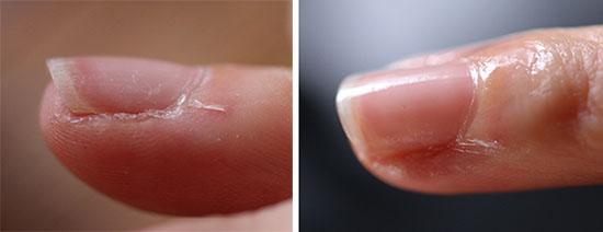 爪のタテジワ ひび割れ ケア おすすめ