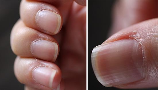 指先の爪のササクレ 手荒れ 解消