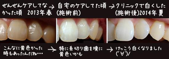 歯ホワイトニング 自宅VSクリニック 体験談 口コミ 3