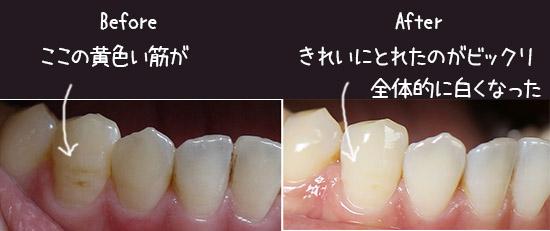 歯ホワイトニング 施術 体験談 感想