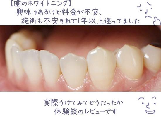 歯 ホワイトニング効果 金額 体験談口コミ 2