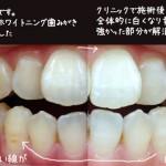 歯ホワイトニング 自宅VSクリニック 口コミ体験談 金額