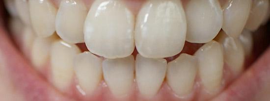 歯 ホワイトニング 東京 金額料金価格 口コミ体験