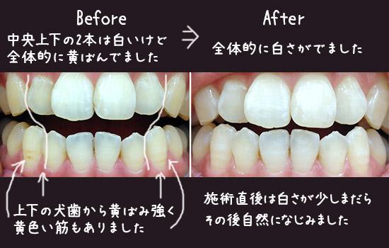 歯ホワイトニング 体験談 ビーフォーアフター 口コミ