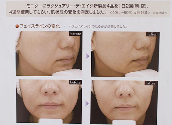 しわ・たるみ改善化粧品 成分が医療レベル アンプルール デエイジ