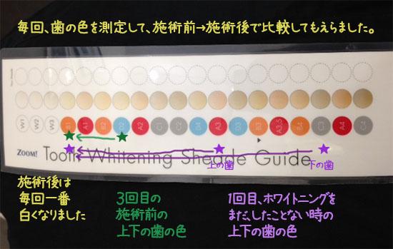 歯 ホワイトニング 東京 2回目 口コミ体験談 おすすめ