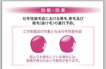 女性 髪脱毛 薄毛に効果 薬 NHKあさイチ!