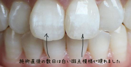 歯 ホワイトニング 東京  口コミ体験談 歯白い斑点
