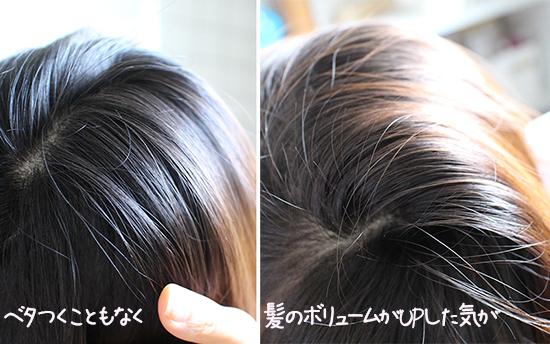 頭皮 かゆみ 女性スカルプ育毛 おすすめ 口コミ