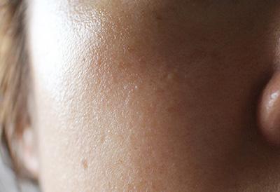 オイル美容液 浸透 保湿おすすめ 口コミ体験談 1