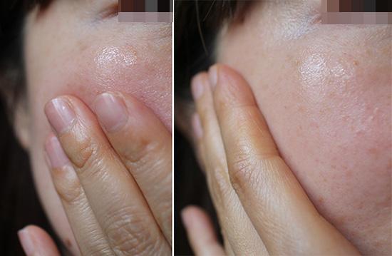 たるみ はり おすすめ化粧品 体験談 ブログ 1