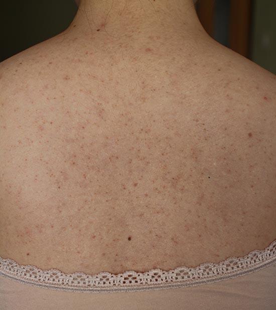 背中のニキビと跡 治し方 治療方法体験談 画像 6