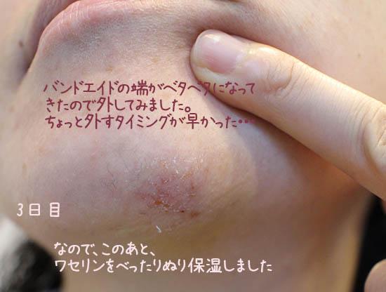 傷早く治す方法 湿潤療法 絆創膏 口コミ 3日目