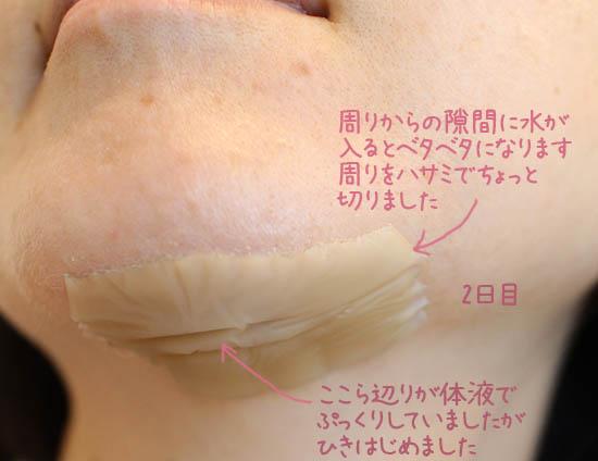顔にスリ傷 怪我 処置 早く綺麗に治す方法 1